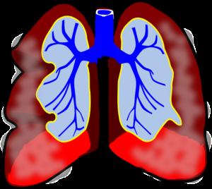astma lunga